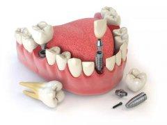 什麼是即刻種植牙?