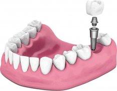 種植牙的危害有哪些?