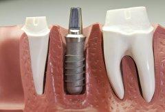 種牙到底有沒有危害?