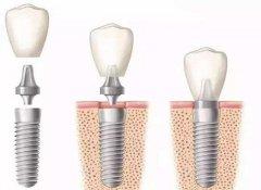 牙齒缺失可以通過什麼方式修復呢?