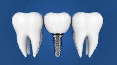 深圳種植牙有哪些優點?