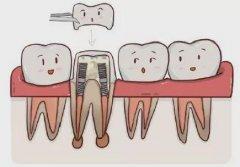 深圳全瓷牙——牙齒什麼情況適合進行全瓷牙修