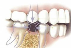 未滿18歲但是牙齒缺失了怎麼辦呢?