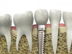 深圳種植牙牙冠有哪幾種?有什麼區別呢?