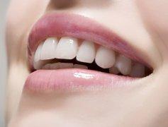 深圳全瓷牙有什麼種類呢?價格會有很大的區別