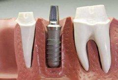 種植牙有什麼副作用?