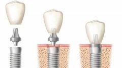 種植牙的保健和維護