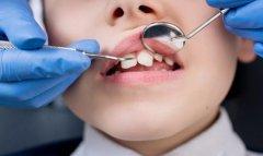 爸媽牙齒不齊會遺傳給自己的小孩嗎?