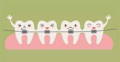 小朋友矯正牙齒是不是要等換完牙呢?