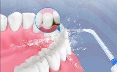 【深圳三康口腔連鎖】洗牙后的注意事項