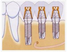 深圳種植牙之什麼是種植體