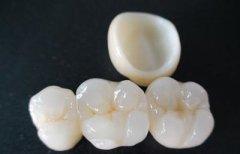 深圳瓷牙套科普—全瓷牙修復前要磨牙嗎?