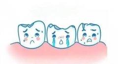 深圳瓷牙套科普-牙齒缺咗一個角點算咧?