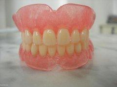 假牙能夠佩戴多長時間?