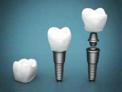什麼是種植牙?種植牙使用壽命多長時間?