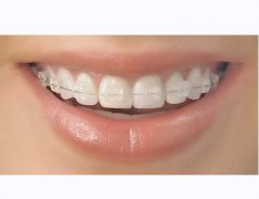 牙齒矯正期間注意事項?