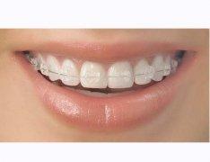 牙齒矯正相對於整形?