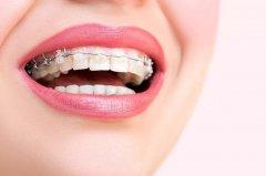 牙齒矯正後為何要戴保持器?