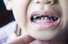 乳牙歪斜需要箍牙嗎?