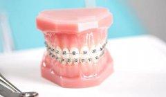 醫生是如何記錄牙位的