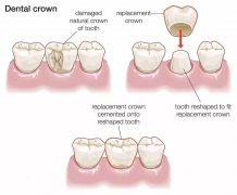 引起牙齒變色的原因主要有哪些