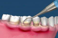 什麼是青少年牙周炎