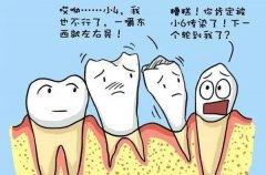 為什麼孕婦的牙齦容易出血
