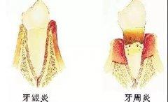 牙床上面的小膿包是怎麼回事