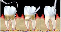 藥物對牙周病有效嗎