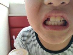 為什麼兒童的口腔中會出現雙層牙