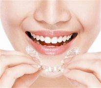 隱形透明牙套有哪些品牌?該怎麼選擇?