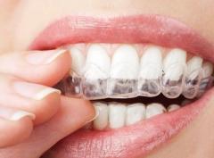 準備在深圳箍牙,戴隱形牙套會痛嗎?