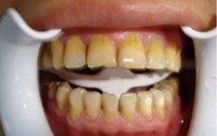 什麼原因導致我們的牙齒變黃呢?冷光美白能補
