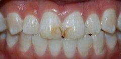 產生頑固性黃牙的原因,怎麼樣才能預防牙齒變