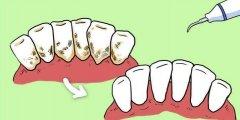 洗完牙齒還是黃黃的?洗牙是否真有用?