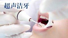 洗牙時爲何會感覺牙齒酸?