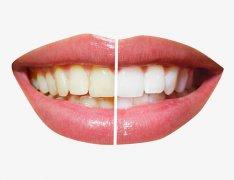 一口黃牙應該如何去除?