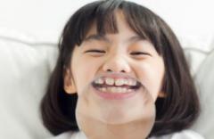 什麼時候箍牙最合適?