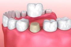 烤瓷牙修復的過程是怎樣的?主要有幾個步驟?