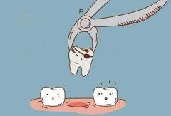 什麼樣的牙齒需要拔除?