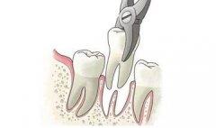 哪些疾病會限制拔牙呢?