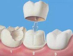 深圳牙冠修復-鑲牙為什麼要磨牙?