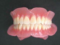 深圳假牙科普-為什麼吃東西時全口假牙容易脫位
