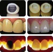 深圳鑲牙選擇哪種材料比較好?