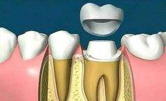 深圳牙冠科普-什麼情況適合做全瓷牙?全瓷牙優