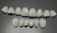 深圳瓷牙套科普-二氧化鋯全瓷牙優點