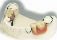 深圳鑲牙科普-拔牙後為什麼要及時鑲牙?
