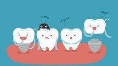為什麽種植牙是最好的牙齒修復方法?