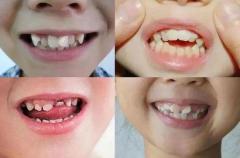 為什麼孩子乳牙長得很整齊,換牙後有些會變得不整齊呢?
